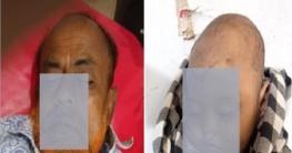 চৌদ্দগ্রামে ট্রাক চাপায় শিশুসহ একই পরিবারের ৩ জন নিহত